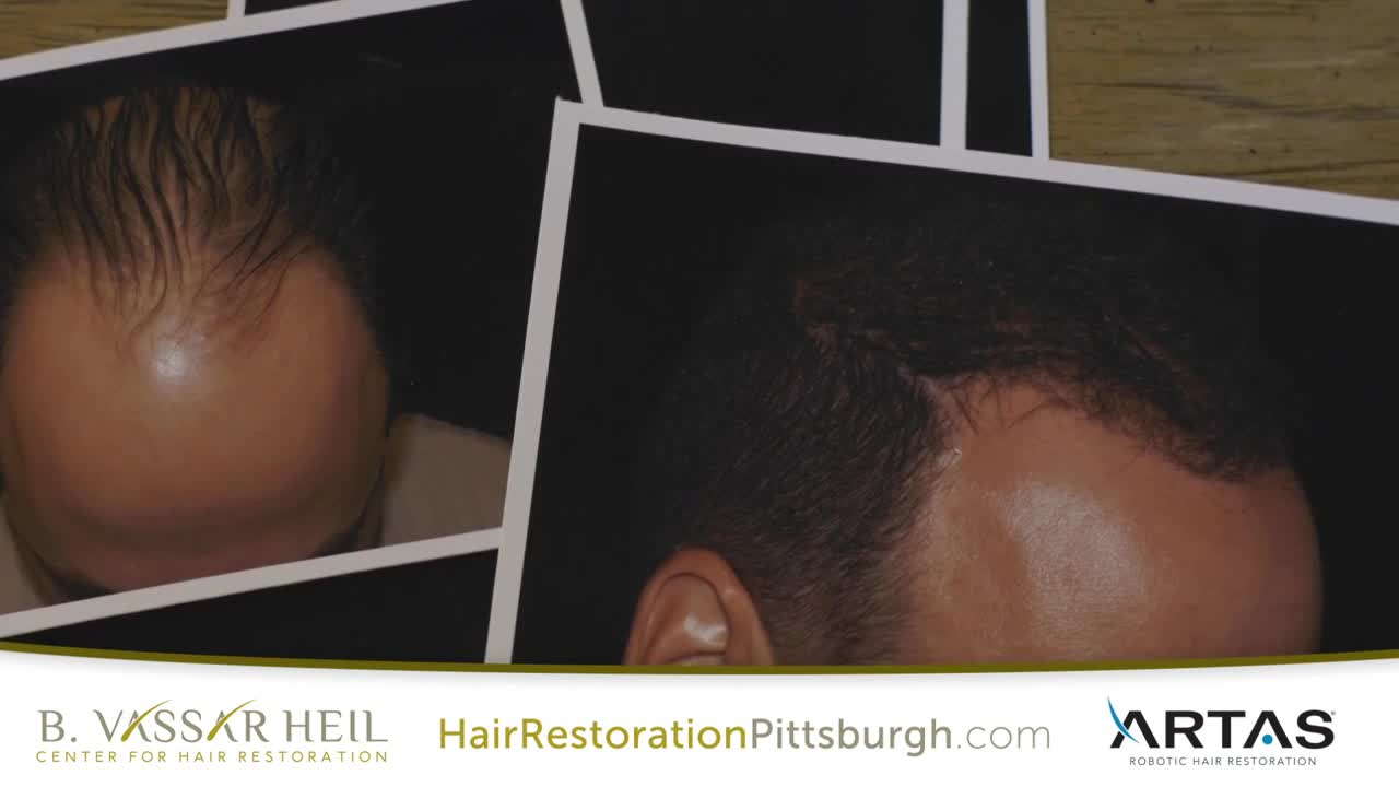 ARTAS Hair Transplant in Pittsburgh, PA