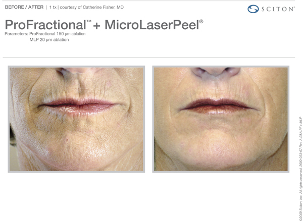 Microlaser Peels Pittsburgh, PA