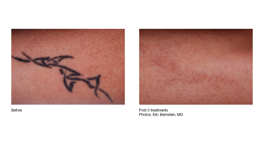 Laser Tattoo Removal Pittsburgh