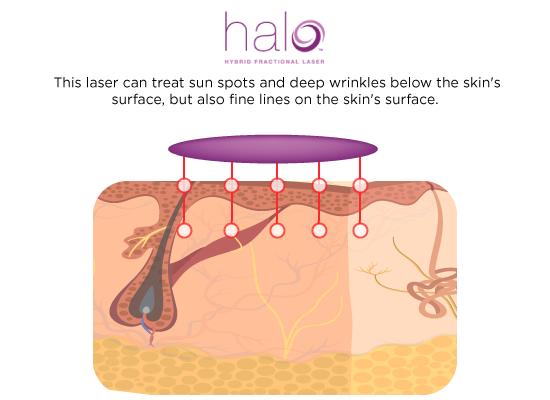 halo-laser