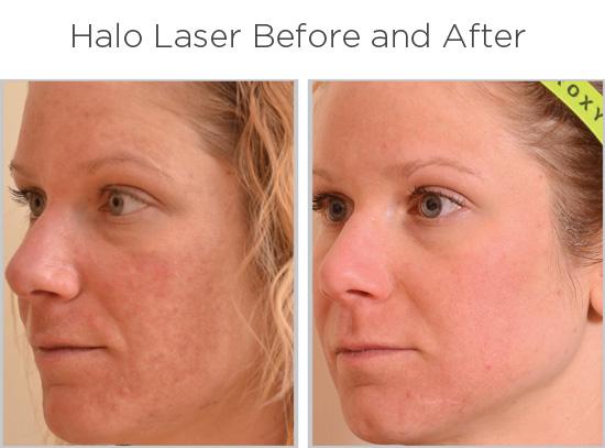 halo-laser-ba