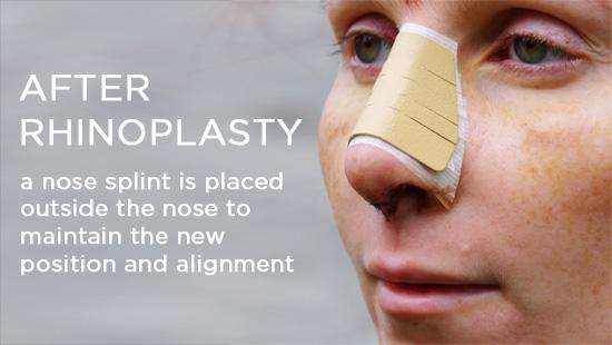 after-rhinoplasty