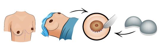 breast-augmentation-1