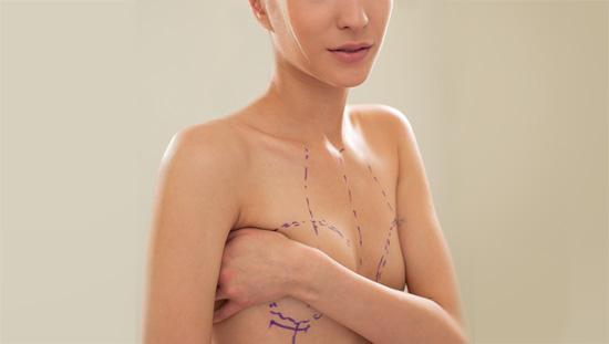 breast-augmentation2