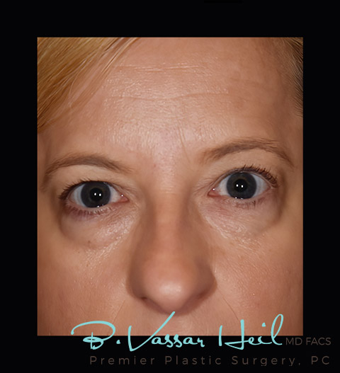 Blepharoplasty in Pittsburgh, PA
