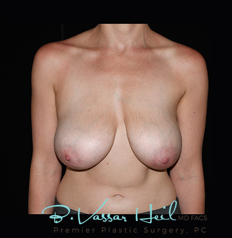 Breast Reduction in Pittsburgh, PA