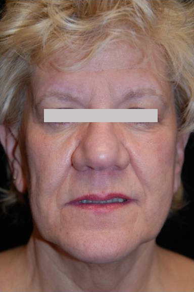 Facelift Surgery in Pittsburgh, PA